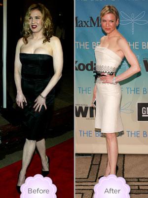 Renée Zellweger Turns 51: How Plastic Surgery Changed Her